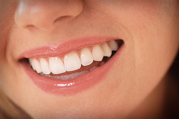Teeth Whitening in Coral Gables